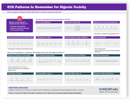 digoxin-toxicity-ecg-reference-tool-image